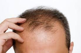 7 راه موثر برای ضخیم کردن قطعی مو
