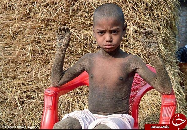 بیماری عجیب پسری که به سنگ تبدیل می شود! +تصاویر