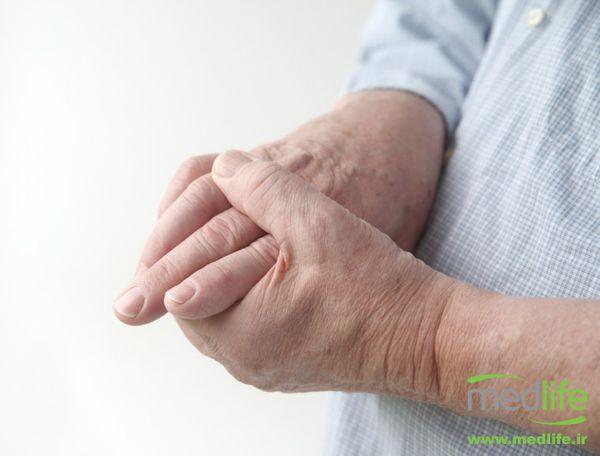 علت و درمان خواب رفتن دست و پا