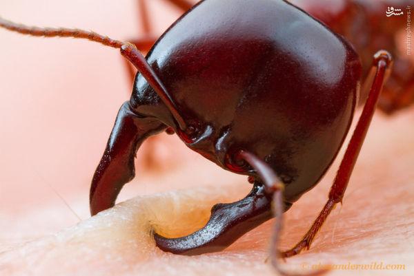 تصاویر/ لحظه گاز گرفتن مورچه از انسان