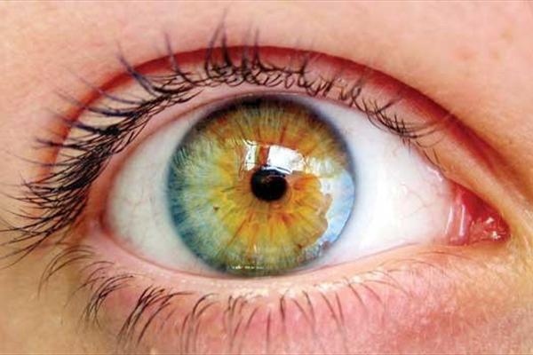تستی ساده برای بینایی چشم+تصاویر