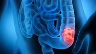 چه کسانی خطر سرطان روده بزرگ را جدی بگیرند؟