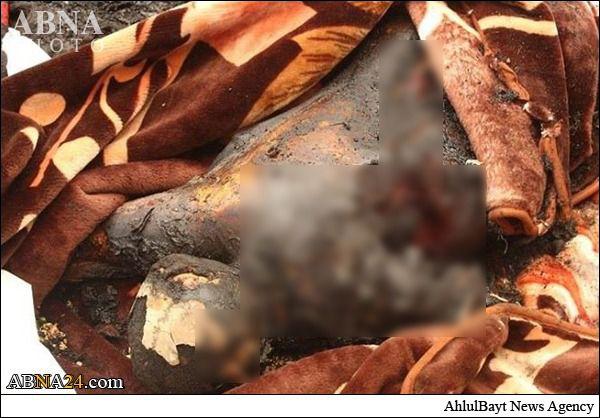 فیلم/سند جنایات آل سعود در یمن (+18)