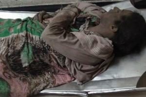 هولناک ترین جنایات سعودی ها در یمن +تصاویر18+/فیلم