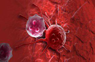 یک سوم سرطان ها در صورت تشخیص زودرس قابل معالجه و درمان هستند