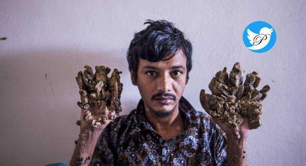 درخواست عجیب یک مرد برای قطع دست هایش! + عکس