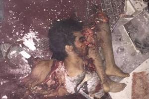 عامل انتحاری مسجد امام علی(ع) در قطیف + عکس(۱۸+)